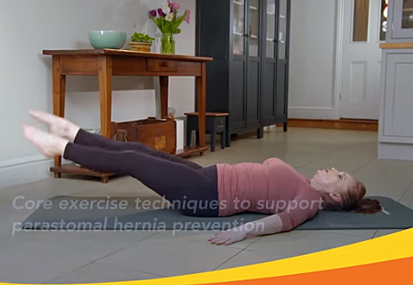 Exercise video for hernias